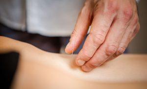 thomas-richard-traitement-acupuncture